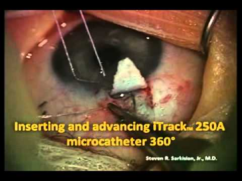 Steven R. Sarkisian, Jr., MD Trabeculotomy  using the iTrack Microcatheter