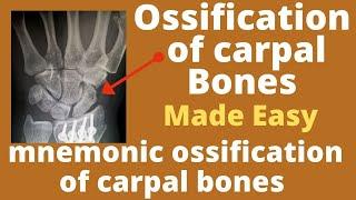 Carpal bones ossification   importance of ossification of carpal bones Estimation of age from carpal