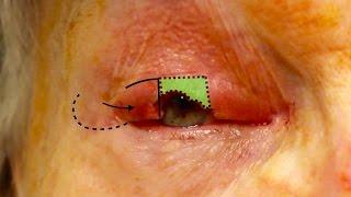 Live Surgery Upper Eyelid Reconstruction