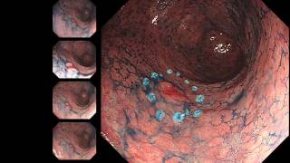 ESD HQ290 -early gastric cancer-