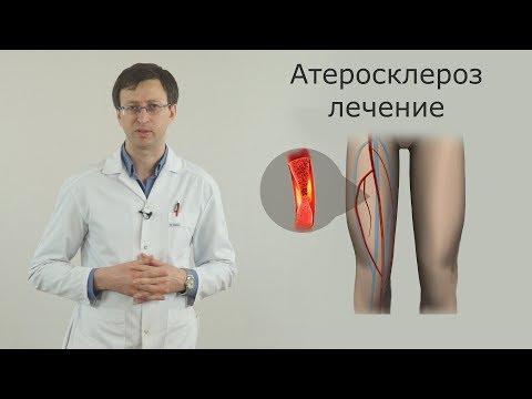 Как лечить склероз сосудов нижних конечностей