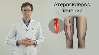 атеросклероз сосудов нижних конечностей, лечение, операции