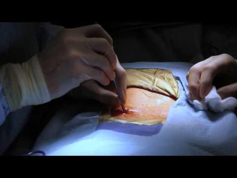 hqdefault - Rhizotomy For Lower Back Pain