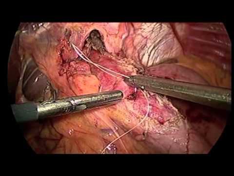 Laparoscopic Heller Myotomy