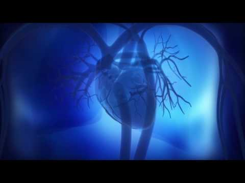 Should Pulmonary Hypertension (PH) Patients Exercise?