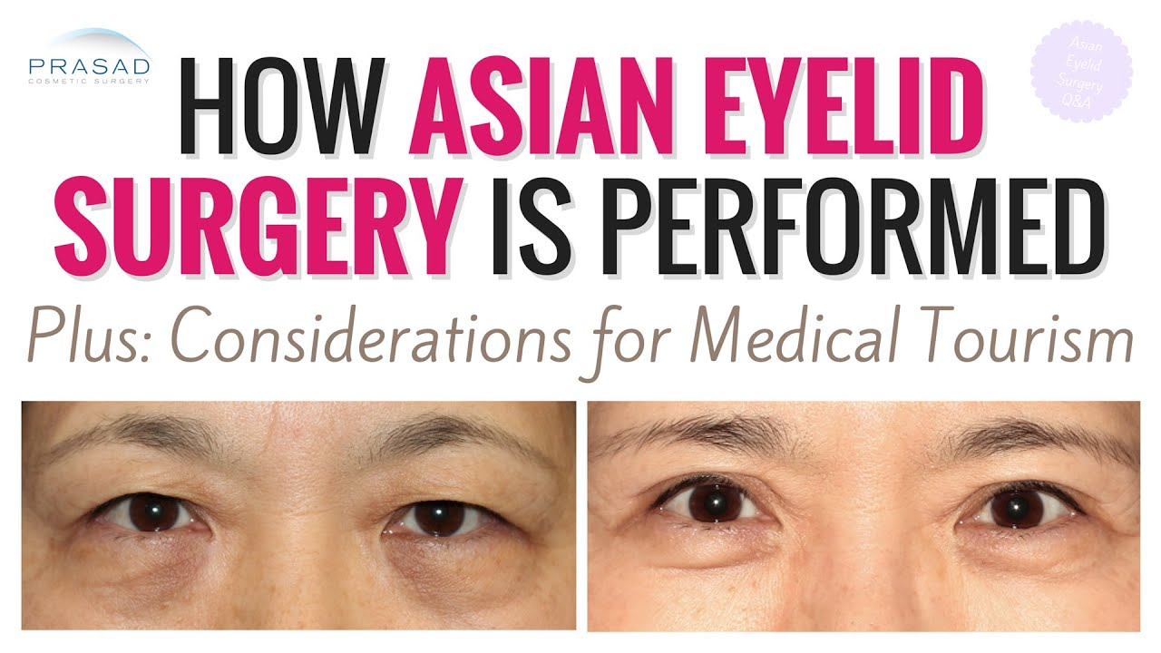 Asian Eyelid Surgery - How Age Often Determines Surgical Technique ...