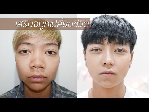 Thailand Surgery เสริมจมูกเปลี่ยนชีวิต จากคนมีปมด้อย กลายเป็นดูดีมั่นใจ #kongjuclinic