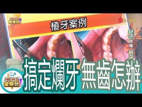 【News金探號】缺牙危機 假牙重建問題多【348-3集】