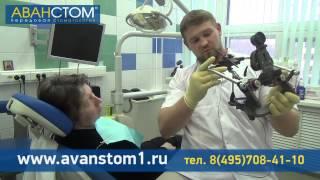 Консультация врача по имплантации зубов в клинике «Аванстом»