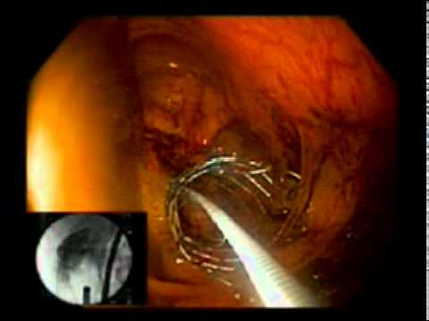 Large Bowel Obstruction, Colonic Stent