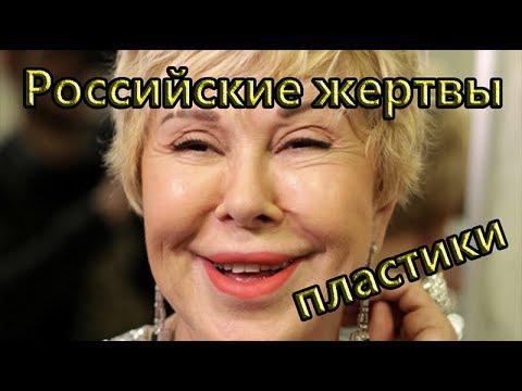 Российские жертвы пластической хирургии