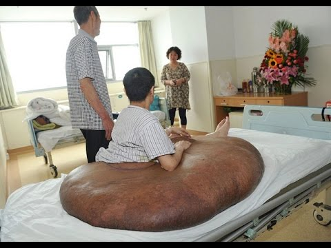 Worlds Biggest Tumor Removed - Yang Jianbin - YouTube