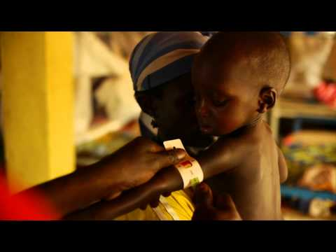 Sharp decline in under-5 mortality in the Niger