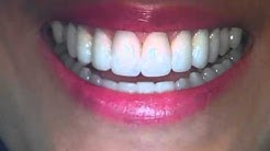 Crooked teeth -Veneers Austin,Tx-Lakeway Before and After Photos by Cosmetic Dentist Dr Patel