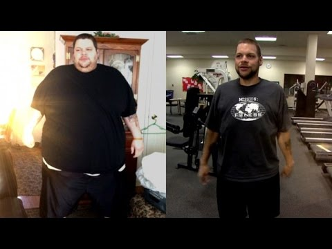 Man Inspired By Taylor Swift to Lose 425 Pounds Reveals Excess Skin