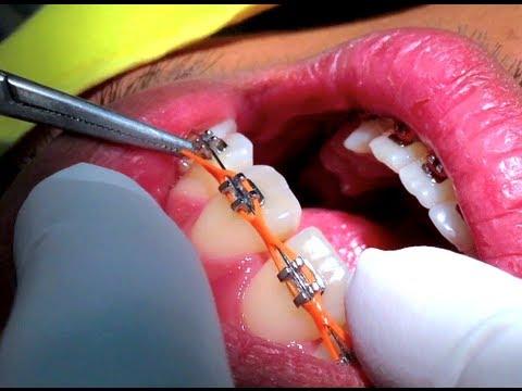 เชนจัดฟัน (c-chain braces) ยางเชนคนจัดฟัน