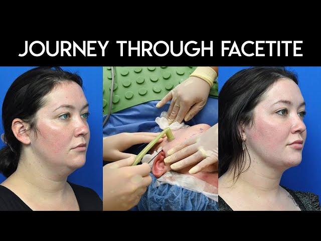 Journey Through Facetite