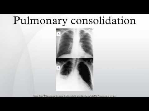 Pulmonary consolidation
