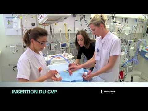 Cathéter veineux périphérique chez le nouveau-né et l'enfant prématuré