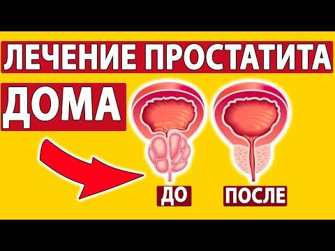 КАК ВЫЛЕЧИТЬ ПРОСТАТИТ? 3 способа от врача!