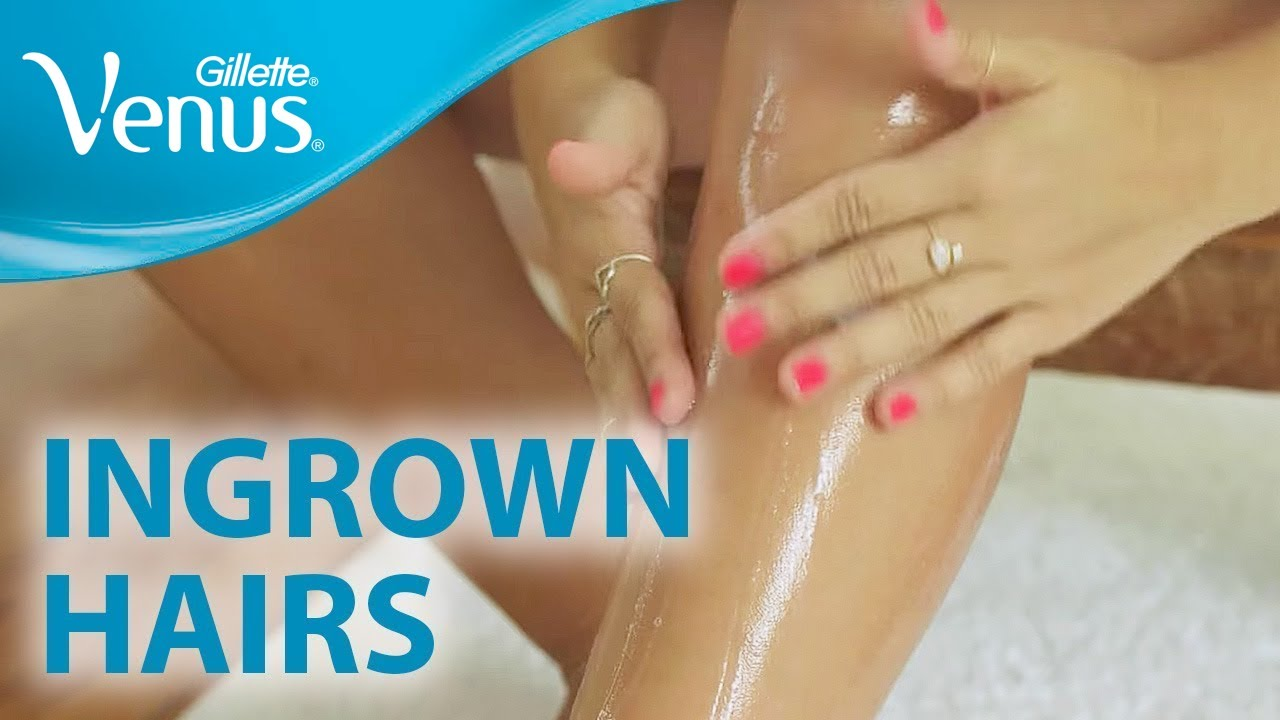 Hair removal on the legs: we achieve smoothness of the legs
