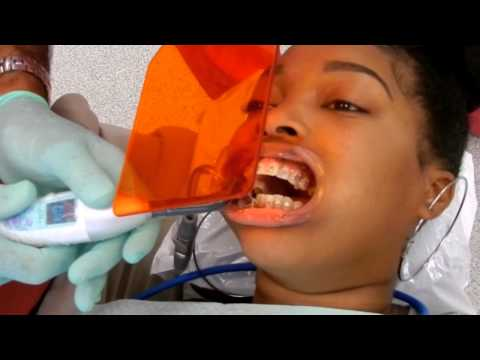 COME WITH ME TO GET MY BRACES!!!