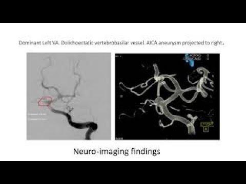Microsurgical clip ligation of an anterior inferior cerebellar artery aneurysm
