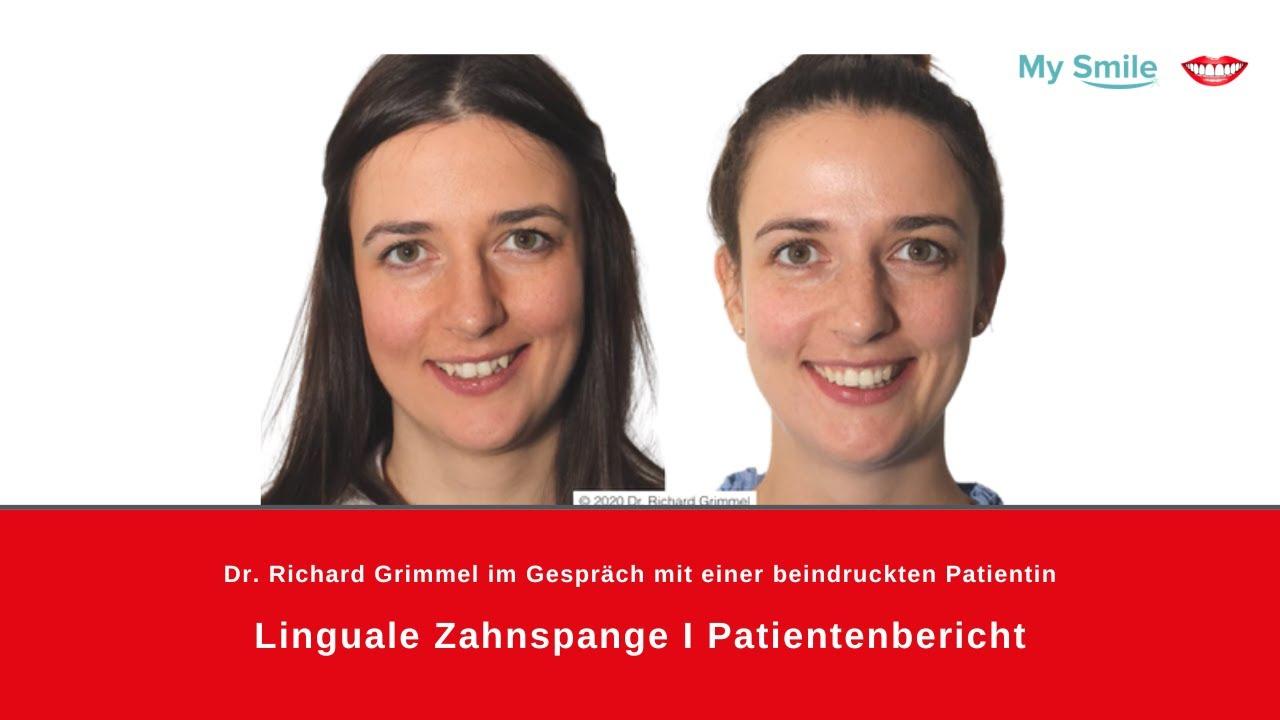 Incognito Heimlich Gerade Zahne Unsichtbare Zahnspange Innen Youtube