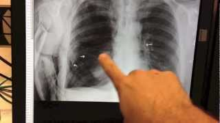 LARGE PNEUMOTHORAX - COLLAPSED LUNG