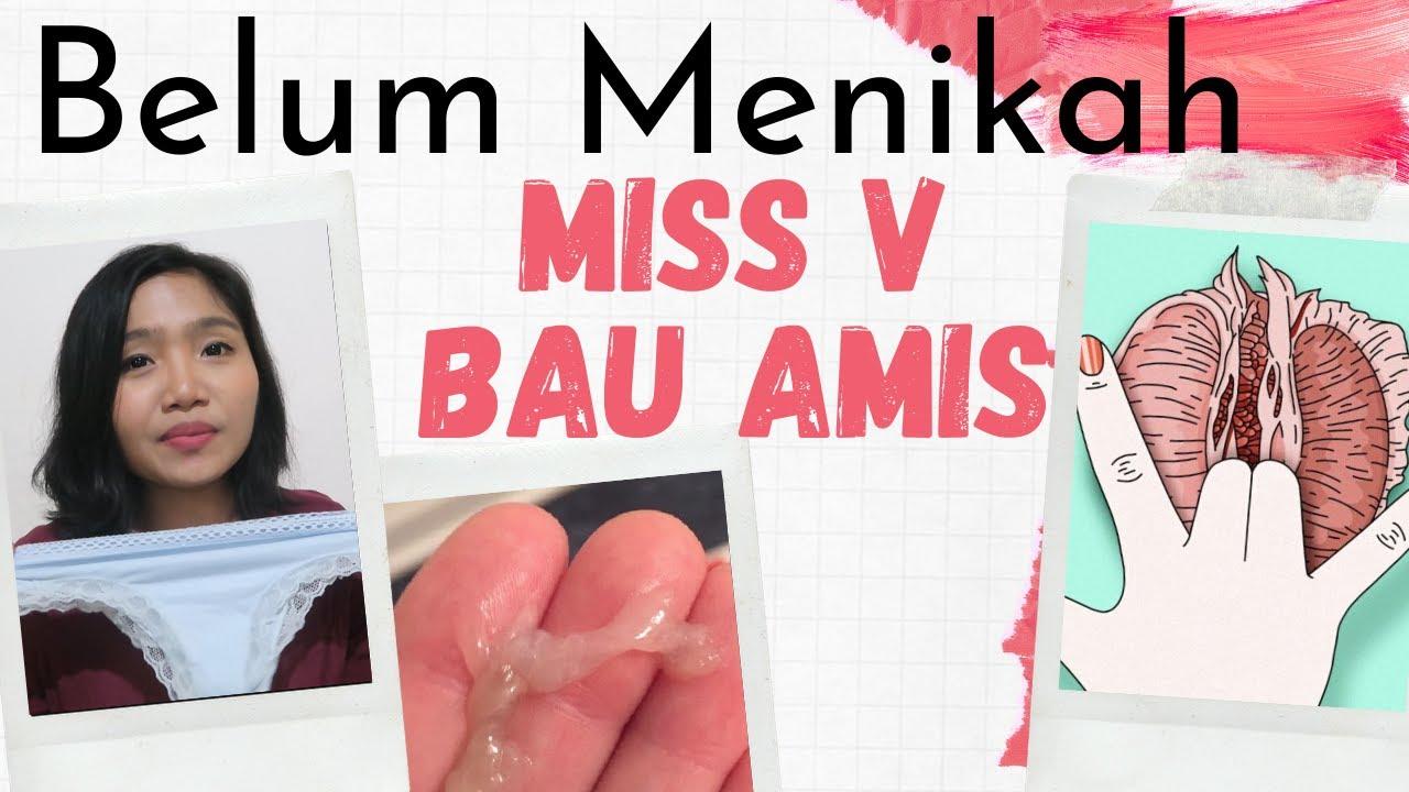Download Belum Menikah tapi Miss V Bau Amis , Mengobati Keputihan Vagina | dr. Emasuperr