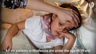 Six children in Minnesota confirmed to have a rare polio-like illness
