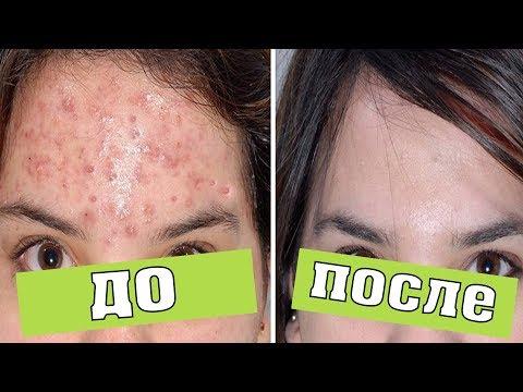 0 - Жирна шкіра обличчя — як позбутися в домашніх умовах?