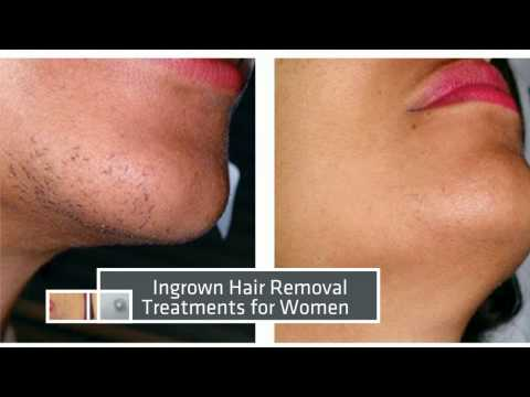 Laser Hair Removal Mi Before After Results