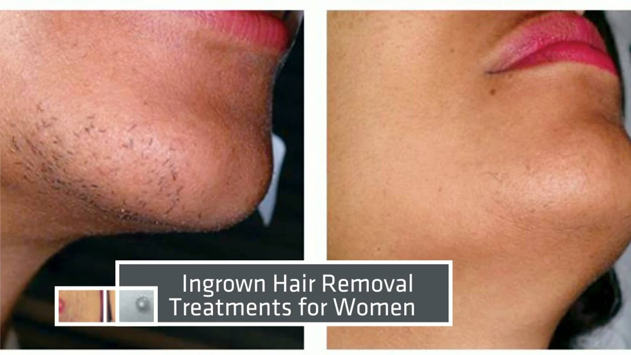 Facial hair removal by laser