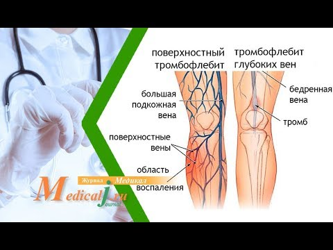 Болят суставы ног - причины и лечение. Что делать с проблемой