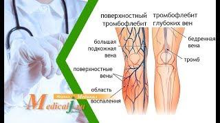 Тромбофлебит поверхностных вен нижних конечностей. Причины, симптомы и лечение