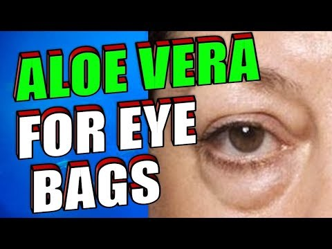 how-to-get-rid-of-stubborn-eye-bags,-dark-circles-&-wrinkles-with-aloe-vera-&-essential-oils