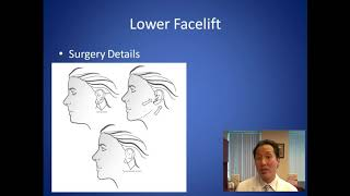How Can I Tighten My Sagging Jowls - Facelift Consultation - Dr. Anthony Youn