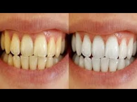 How To Get Rid Of Yellow Teeth Overnight Myhiton