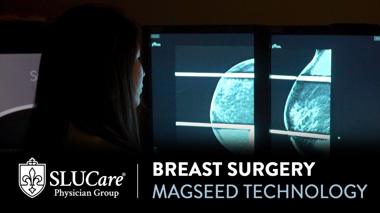 Magseed Technology for Breast Cancer Surgery - SLUCare Breast Surgery