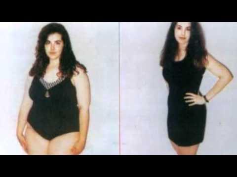 Retirar a gordura de um estômago e os lados dos homens