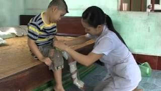 Bài tập danh cho trẻ có bàn chân khèo bẩm sinh