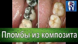 Терапевтическая стоматология: как устанавливают композитную пломбу.