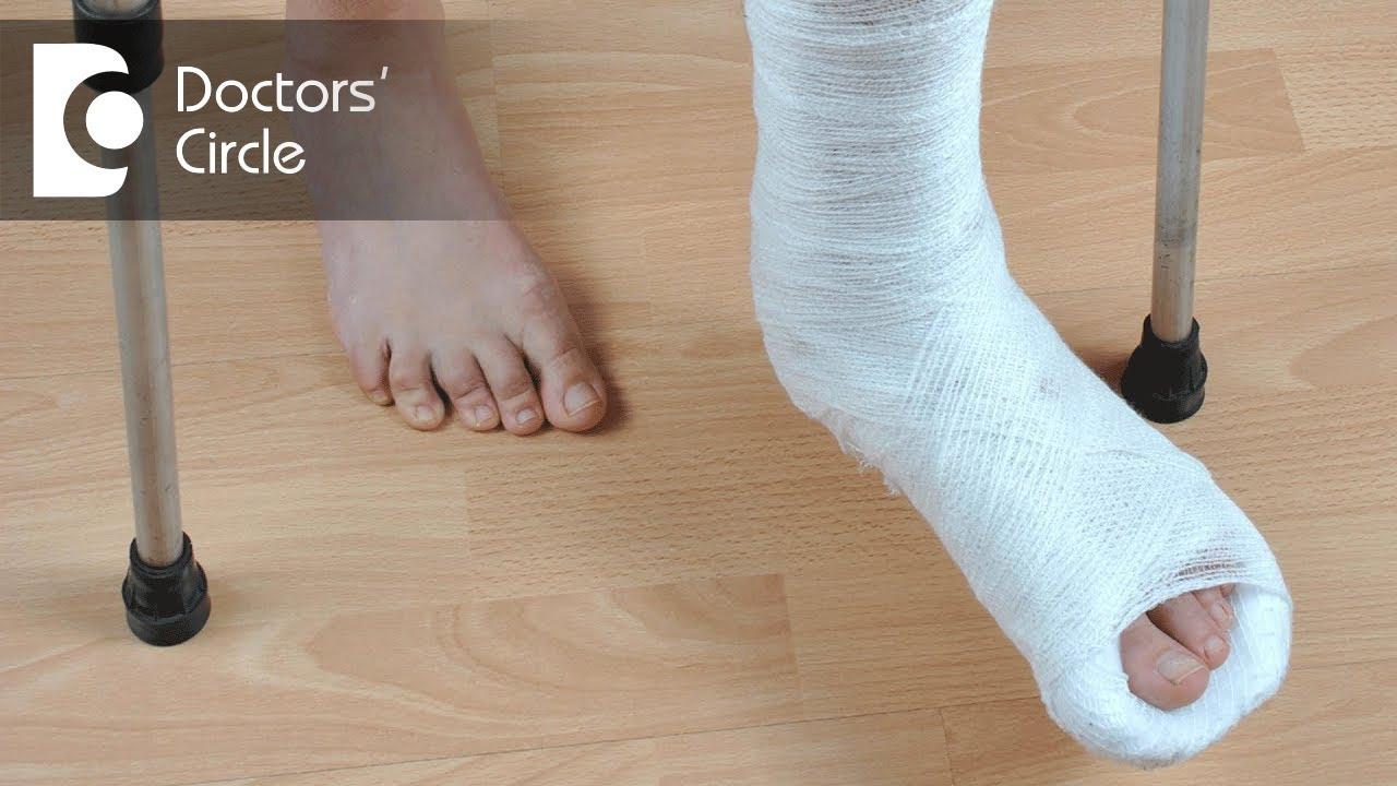 When can one start walking after Leg Fracture? - Dr  Kiran Sundara Murthy