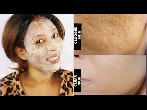 SAY GOODBYE TO CLOGGED PORES, MOUTH WRINKLES, SAGGING SKIN  TIGHT CLEAR GLOWING SKIN |Khichi Beauty