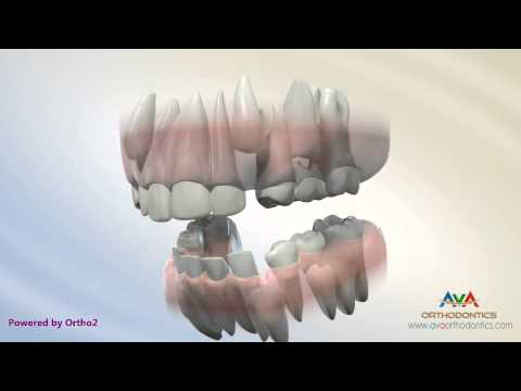Orthodontic Treatment For Severe Crowding Serial Extraction Youtube