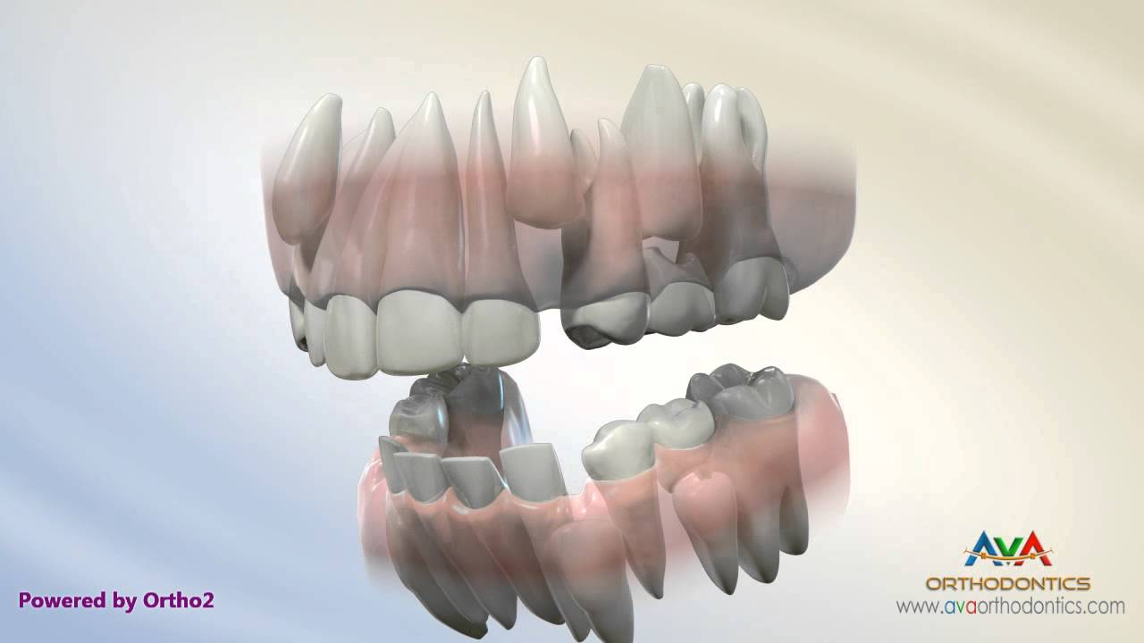 serial extraction orthodontic treatment youtube