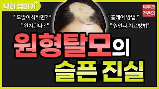 원형탈모 치료, 호갱당하지 마세요 by 피부과전문의 (…