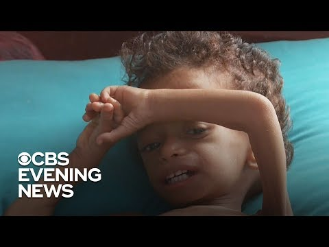 Time running out for starving children in Yemen