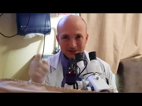 Remover un tamp�n o preservativo PERDIDO de la VAGINA TALLER
